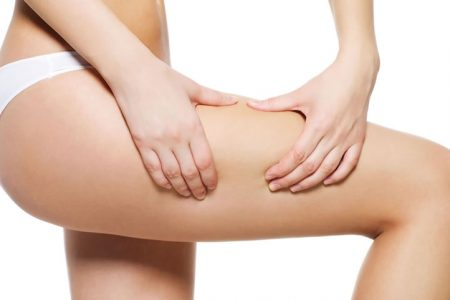 Cómo prevenir la celulitis